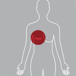 ravalidatie na borstamputatie borstkanker litteken